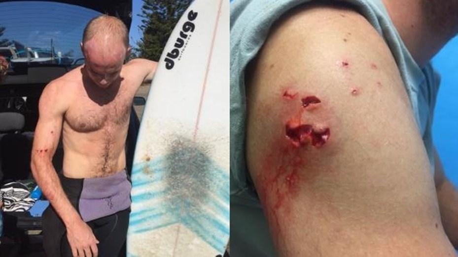 INSÓLITO: Un video viral lo salvó de un tiburón blanco