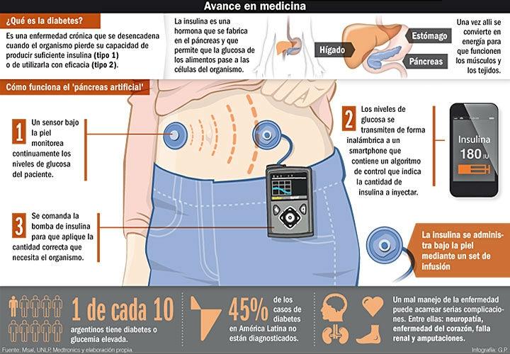 Crean el primer páncreas artificial — América Latina