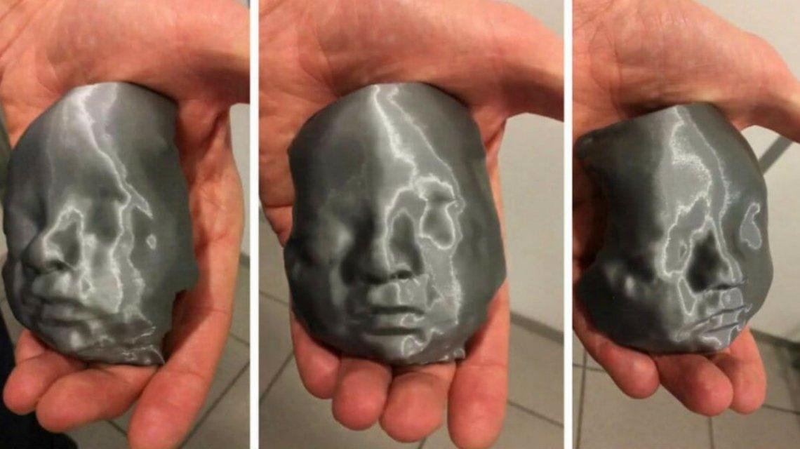 Imprimieron en 3D la ecografía para los padres ciegos